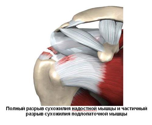 Сухожилия надостной мышцы плечевого сустава фото медицина ложный сустав лечение федеральные клиники